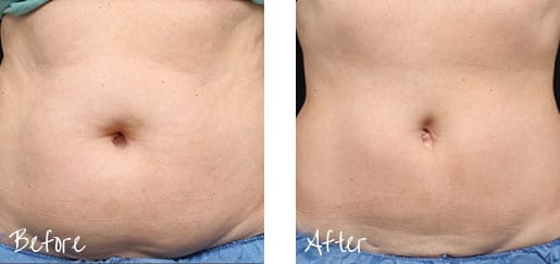 Painlessly freeze away stubborn fat with Coolsculpting