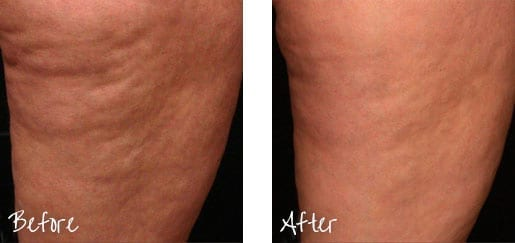 Want to look younger without surgery? A Laser Lift may be in your future.