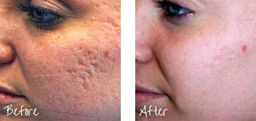 Stimulate collagen production and help smooth out your skin with radiofrequencies.