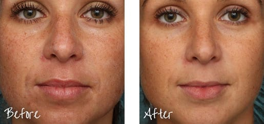 Soft, smooth skin is possible with Pixel® Laser resurfacing.