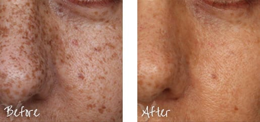 Before & After of nose with intense pulsed lights treatments