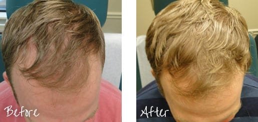 Before And After Hair Restoration Treatment Image 1