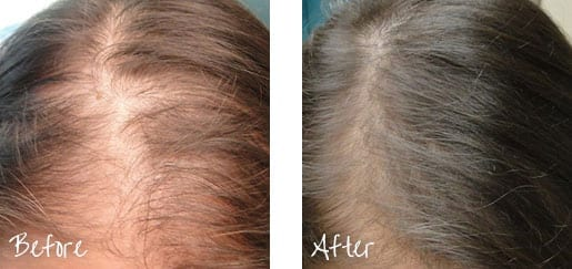 Restore your hairline using your body's own serum