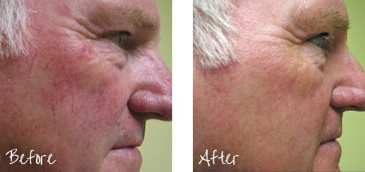 Before & After of facial blemish with intense pulsed lights treatments
