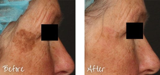 Before & After of face with intense pulsed lights treatments