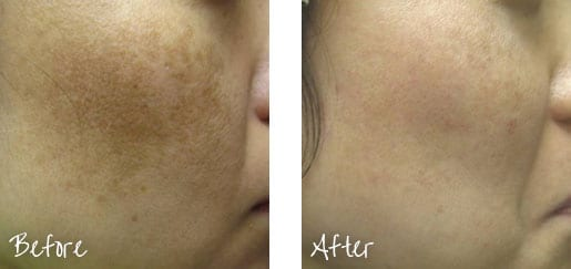 Before & After of cheek with intense pulsed lights treatments
