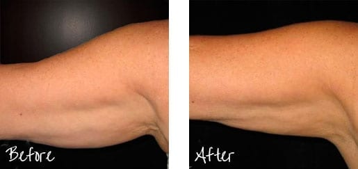Before & After of underarm with cosmetic treatments