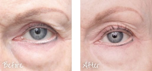 Before & After of skin around eye following Ultherapy treatments