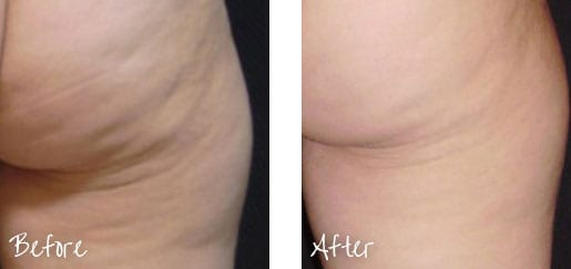 Before & After of back of leg following cellulite treatment