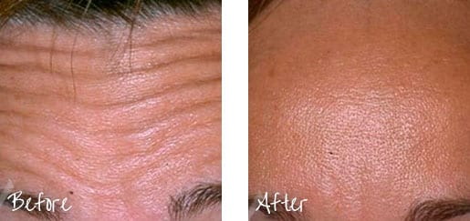 To smooth fine lines and wrinkles, you simply can't beat Botox.