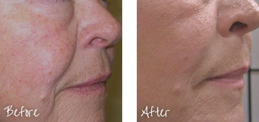 Stimulate growth of your natural collagen and smooth away fine lines with Radiesse.