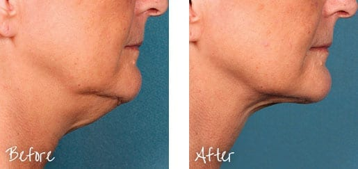 Before & After of chin with Kybella treatments