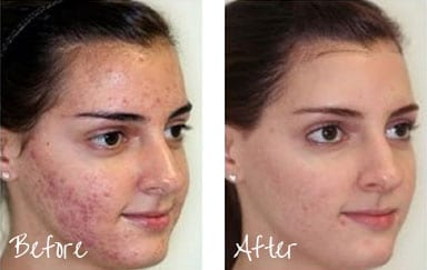 Before & After of woman's face with microdermabrasion treatments
