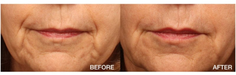Portland Dermal Filler Treatments - VanderVeer Center