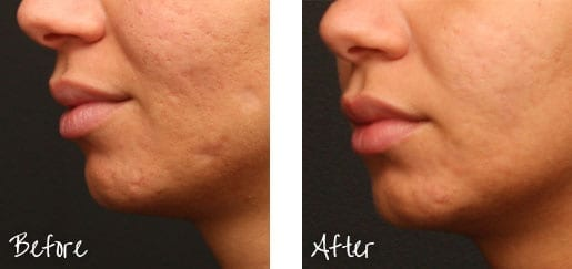 Reveal smoother, more even skin