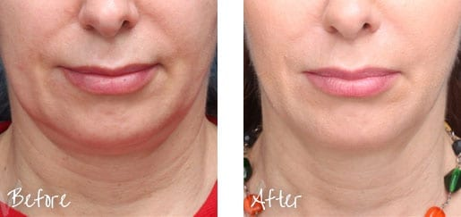 We can help you look younger without surgery.