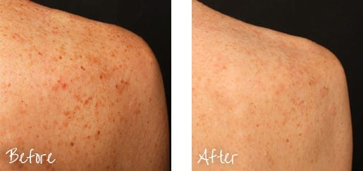 Smoother, more even-toned skin could be in your future.