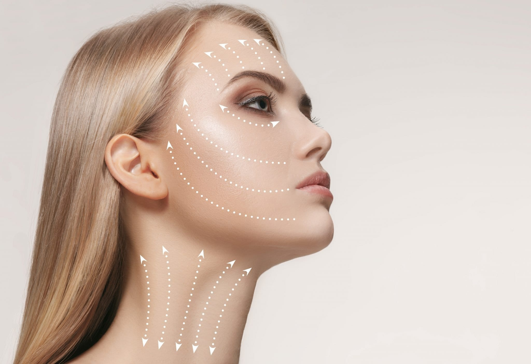 Stimulate Collagen & Lift Off Discoloration with IPL!